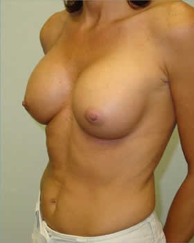 After-Augmentation Patient 9