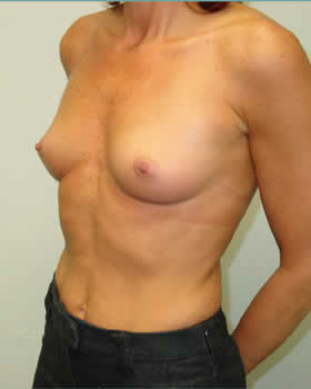 Before-Augmentation Patient 9