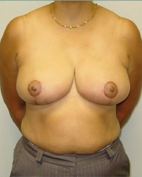 After-Breast Reduction 13