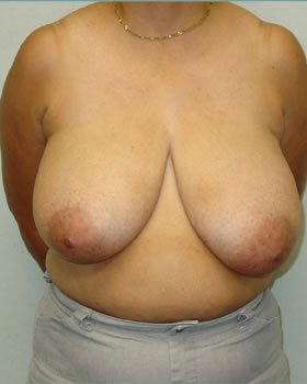 Before-Breast Reduction 13