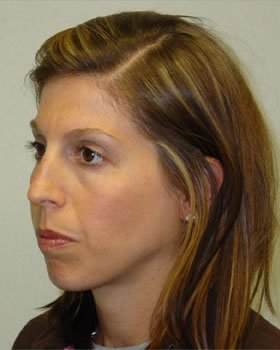 Before-Rhinoplasty 11