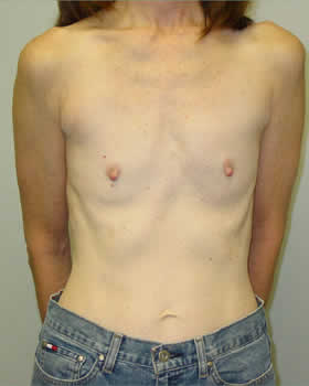 Before-Augmentation Patient 10