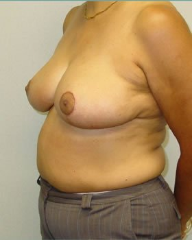 After-Breast Reduction 14