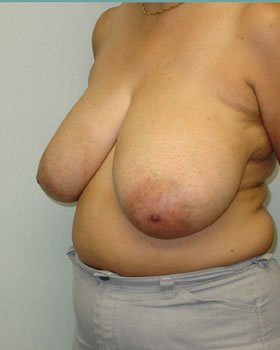 Before-Breast Reduction 14