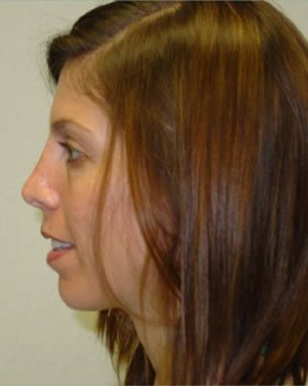 After-Rhinoplasty 12