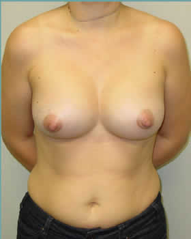 After-Augmentation Patient 11
