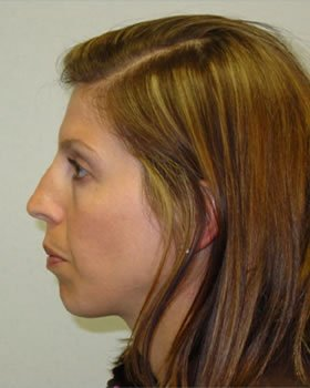 Before-Rhinoplasty 12