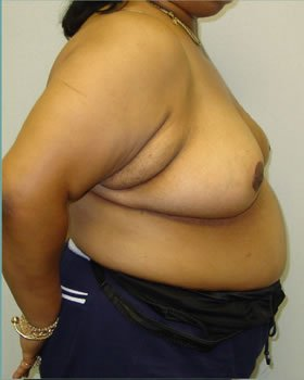 After-Breast Reduction 15