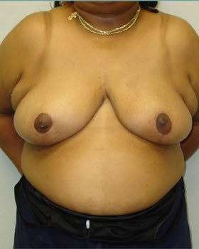 After-Breast Reduction 16