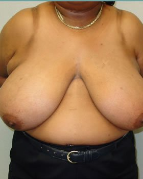 Before-Breast Reduction 16