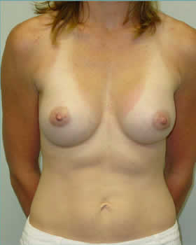 After-Augmentation Patient 13