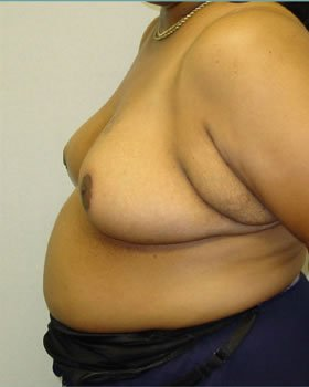 After-Breast Reduction 17