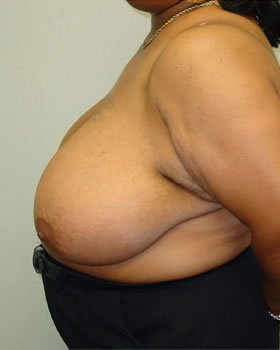 Before-Breast Reduction 17