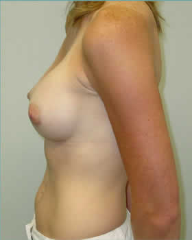 After-Augmentation Patient 14