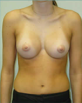 After-Augmentation Patient 16