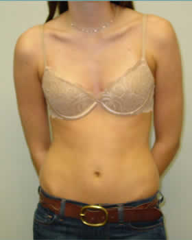 Before-Augmentation Patient 17