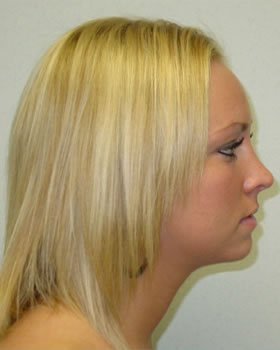 After-Rhinoplasty 1