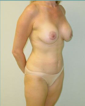 After-Tummy Tuck 1
