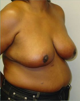 After-Breast Reduction 4