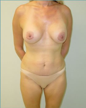 After-Tummy Tuck 2
