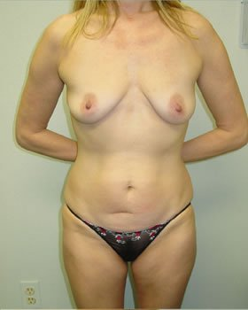 Before-Tummy Tuck 2