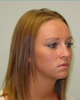 Before-Rhinoplasty 2