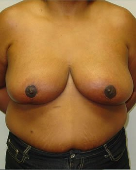 After-Breast Reduction 5