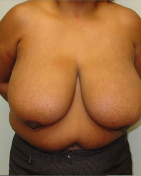 Before-Breast Reduction 5