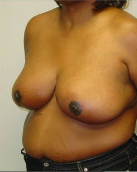 After-Breast Reduction 6