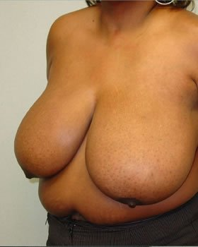 Before-Breast Reduction 6