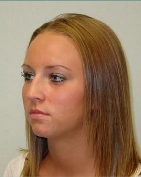 Before-Rhinoplasty 4
