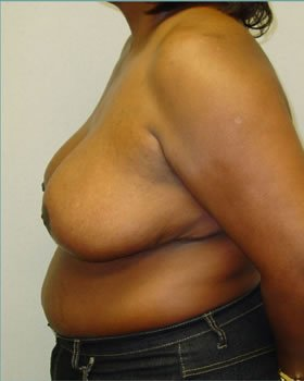 After-Breast Reduction 7