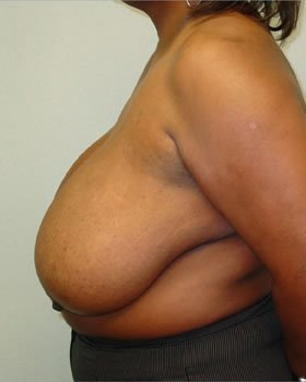 Before-Breast Reduction 7