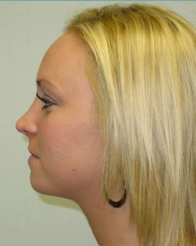 After-Rhinoplasty 5
