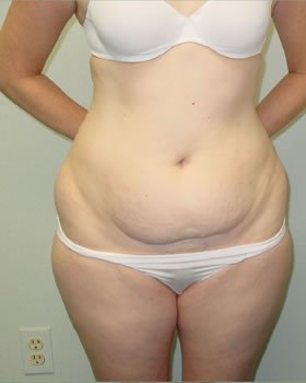 Before-Tummy Tuck 5