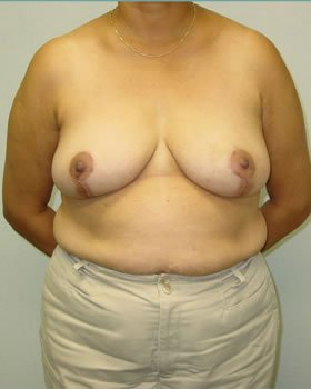 After-Breast Reduction 9