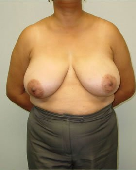 Before-Breast Reduction 9