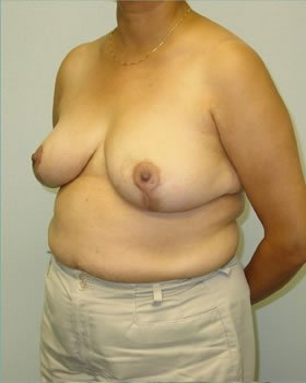After-Breast Reduction 10