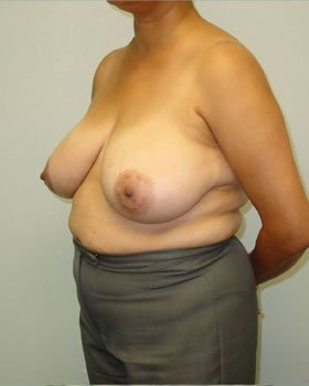 Before-Breast Reduction 10