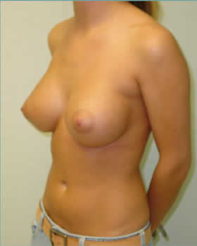 After-Augmentation Patient 7