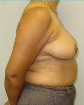 After-Breast Reduction 11