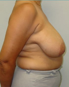Before-Breast Reduction 11