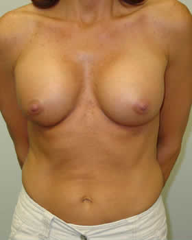 After-Augmentation Patient 8