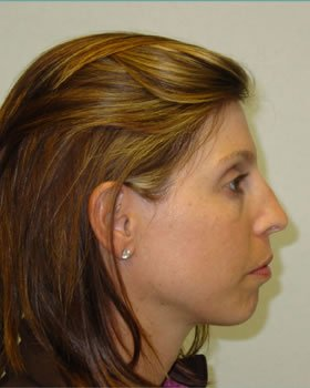 Before-Rhinoplasty 9