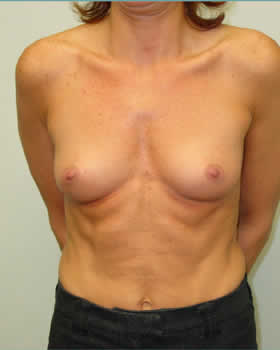 Before-Augmentation Patient 8