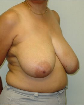 Before-Breast Reduction 12