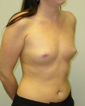 Before-Breast Augmentation 20b