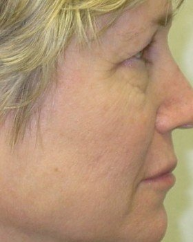 Before DOT laser for skin lines and age spots
