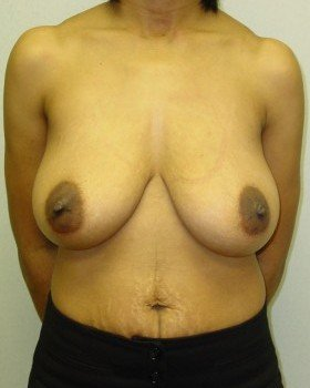 Before-Breast Reduction 20 ap