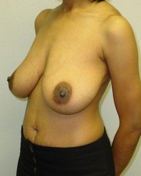Before-Breast Reduction 20 llo
